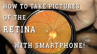 Retinal photography with smartphone