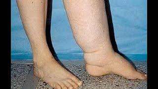 ★8 проблем ног, которые могут говорить о серьезных заболеваниях.