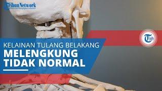 Tulang belikat atau tulang scapula atau shoulder blade adalah tulang berbentuk segitiga yang terleta.