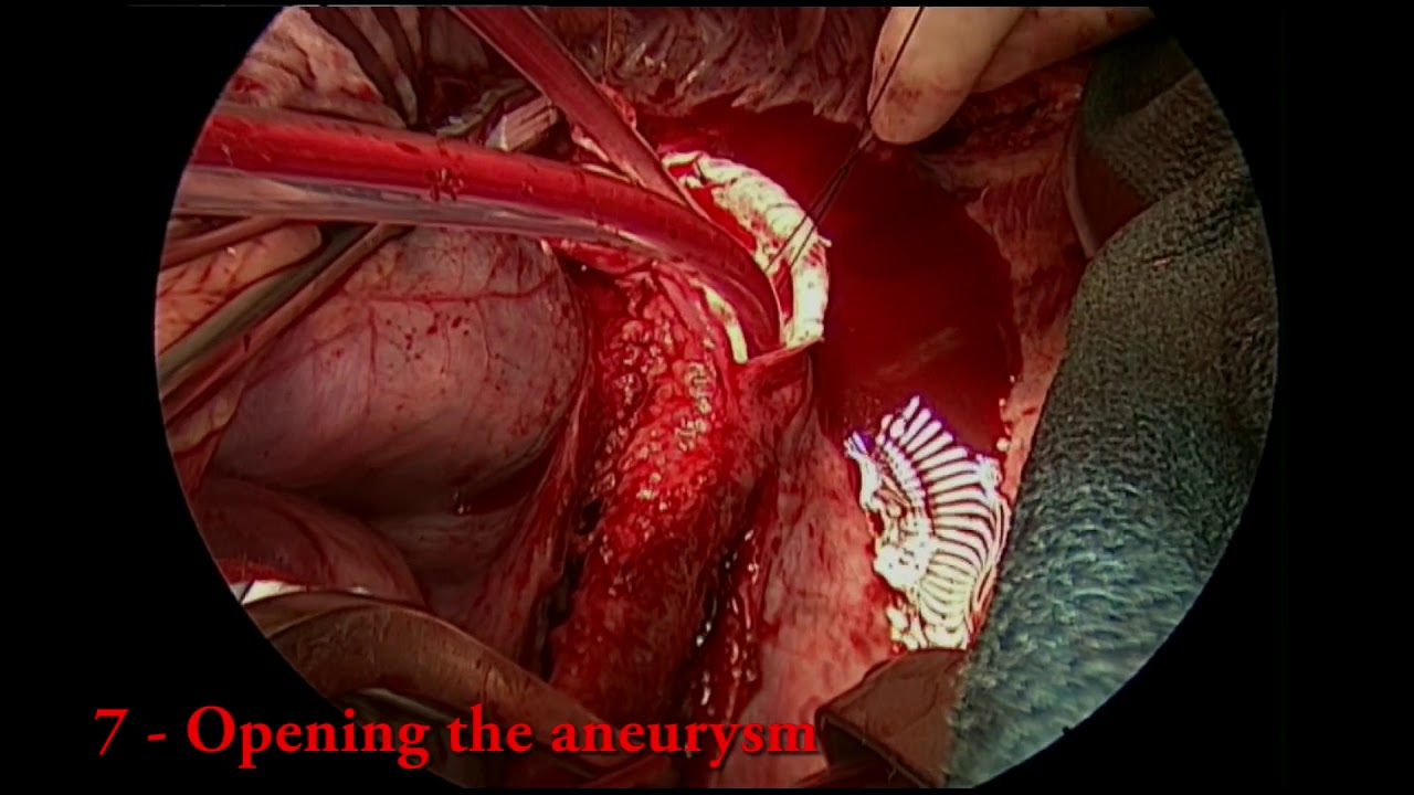 Descending Thoracic Aortic Aneurysm Repair Youtube