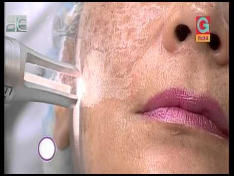 Tratamiento de manchas faciales con láser