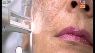 Con roto en vaso sanguíneo el facial tratamiento láser