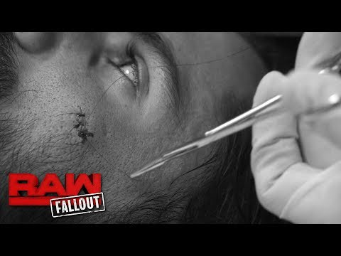 Seth Rollins receives stitches after soaring onto Bray Wyatt: Raw Fallout, June 19, 2017