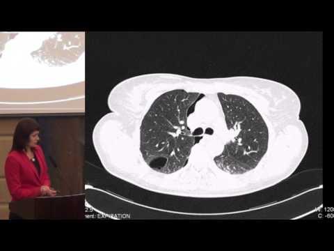 Дифференциальный диагноз кистозных заболеваний легких. Макарова М.А.