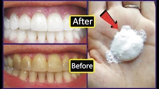 No Body Can Beat This Instant Teeth Whitening Formula In Just 1 Minute Beauty Tips In Urdu