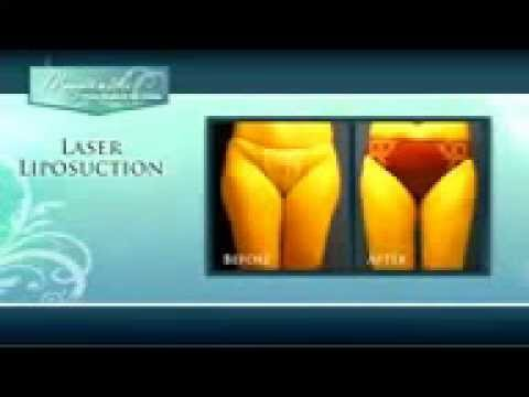 Liposuction - Northern Virginia liposuction