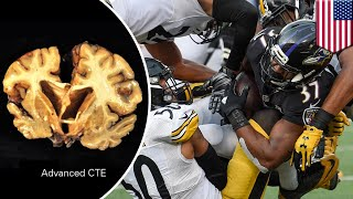Brain disease CTE found in 99% of NFL players, latest brain study shows - TomoNews
