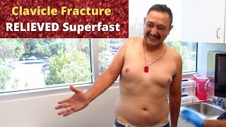 Clavicle Fracture Pain Relieved In No Time (REAL TREATMENT!!!)