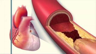NSAIDs and Heart Disease - Mayo Clinic