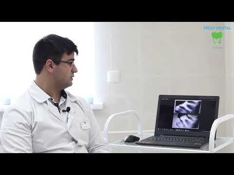 Тевосян А.Б. Обострение хронического периодонтита (Клиника Фрэш Дентал)
