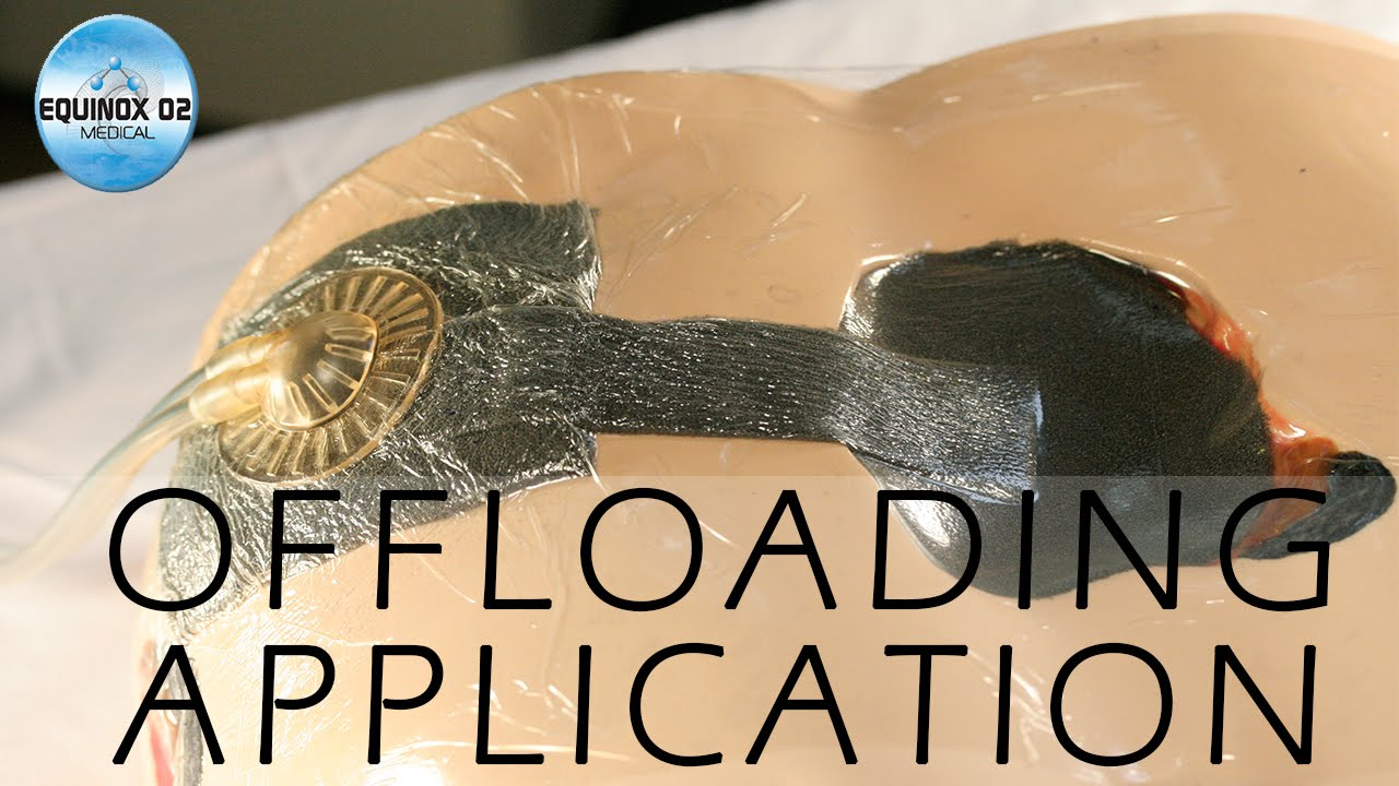 Download NPWT Black Foam Wound Dressing Kit  Offloading Application by Holly Desimone @ Equinox Medical
