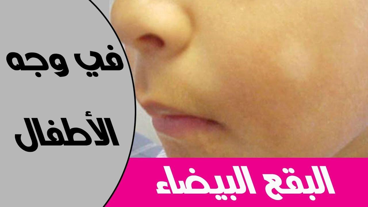 5 اسباب لظهور البقع البيضاء في الوجه عند الاطفال Youtube