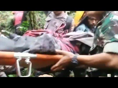 Korban Selamat Pesawat Jatuh Alami Patah Tangan