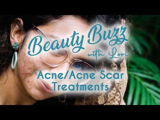 Beauty Buzz with Lori: Acne & Acne Scar Treatments