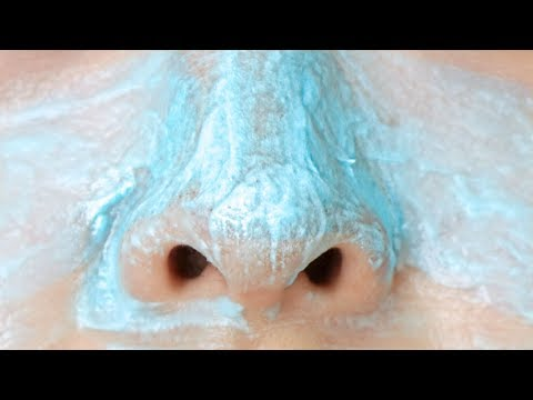 HOW TO: Get Rid Of Blackheads INSTANTLY!