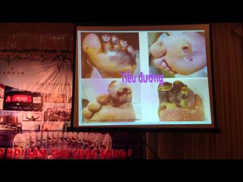San pham Vision-Co che tac dong benh Tieu Duong