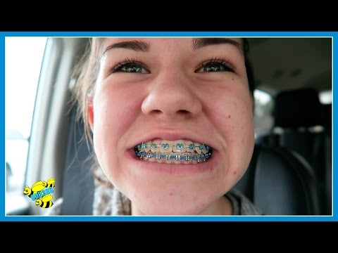 🤔 WHEN ARE MY BRACES COMING OFF! 🤔 ~ VLOG