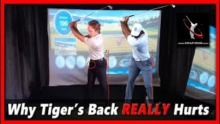 Why Tiger Woods Back REALLY Hurts - 2019 British Open Championship