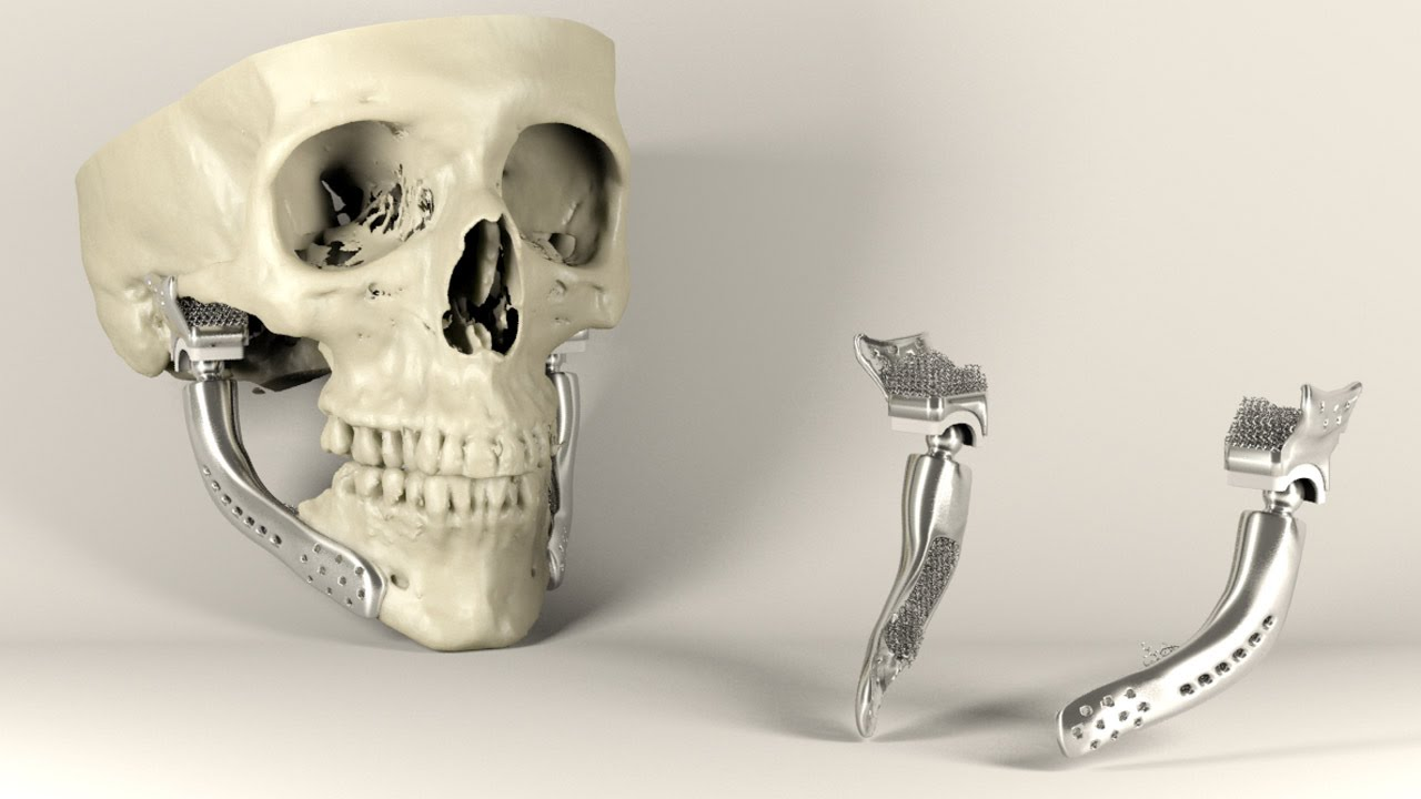 Sebastiaan Deviaene Designs Medical Implants Using Video