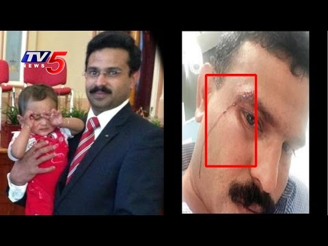Racial Attack | Indian Taxi Driver Attacked by Teenagers in Australia | TV5 News