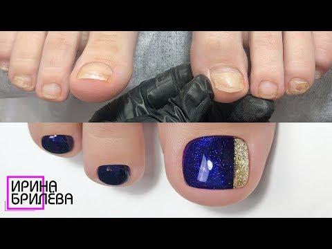 Педикюр (ПРЕОБРАЖЕНИЕ) 🌸 Ремонт травмированного ногтя
