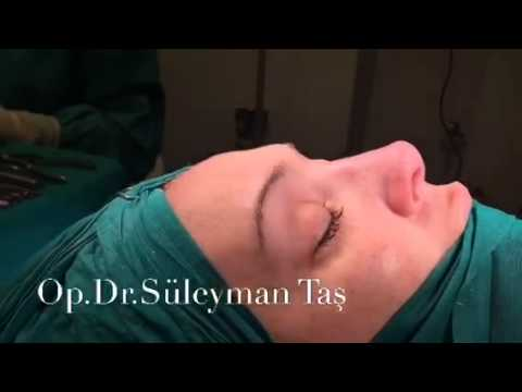Rhinoplasty Before and After - Assoc.Prof.Dr. Suleyman Tas