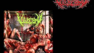 Vulvectomy (Ita) - Dirty Rotten Infibulation