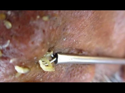 Blackhead Extraction