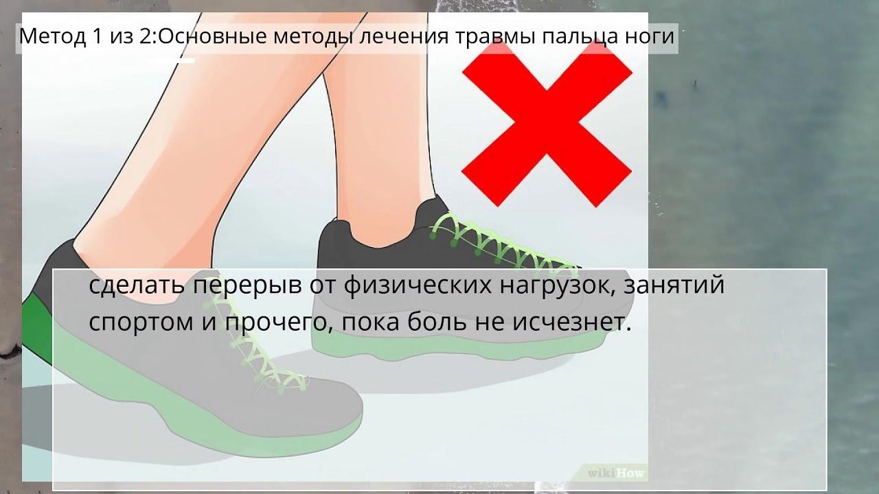 Как лечить ушиб пальцев ног