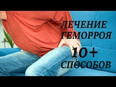 Лечение геморроя народными средствами, лечим геморрой в
