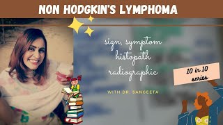 Hodgkins lymphoma is a neoplasm of the immune system that is marked by the presence of a type of cel.