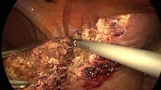 Hépatectomie gauche par coelioscopie Gros CHC sur foie non cirrhotique