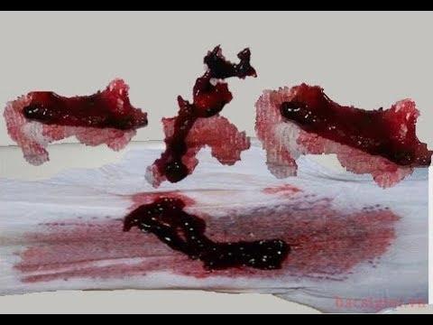 Trị sao khi kinh nguyệt ra nhiều cục máu đông ? #1