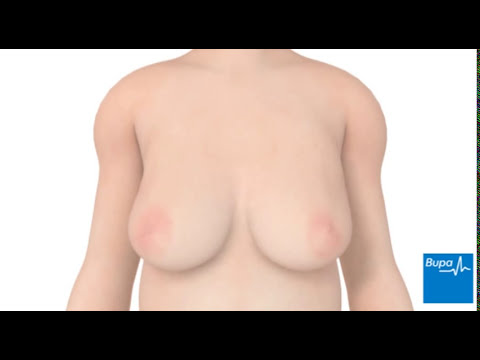 How breast reduction surgery is carried out