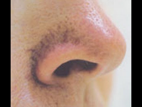 large pores on nose - photo #15