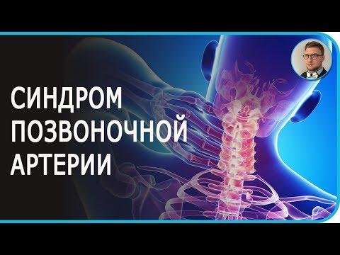 Синдром позвоночной артерии | причины симптомы лечение