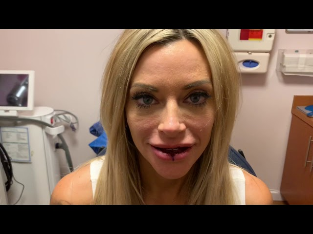 Dallas Silicone/Argiform Lip Reduction/Correction Immediately After