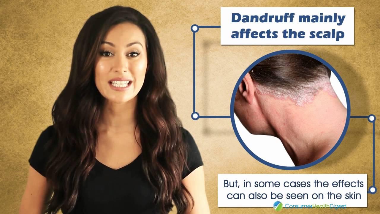 how to avoid dandruff naturally