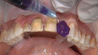 Chairside Live Episode 201: Replacing Unesthetic Direct Composite Veneers