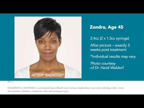 Radiesse Premium Dermal Filler | Weight Loss | Aesthetics