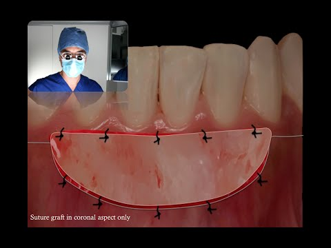 How Does A FREE GINGIVAL GRAFT WORK (SurgicalMaster Video)