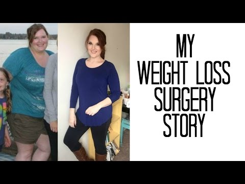 My Weight Loss Surgery Story - VSG - Before and After Pics