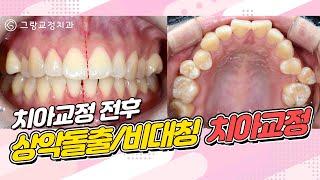 상악돌출/비대칭 치아교…