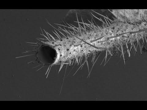 Комар под электронным микроскопом.A mosquito under an electron microscope.