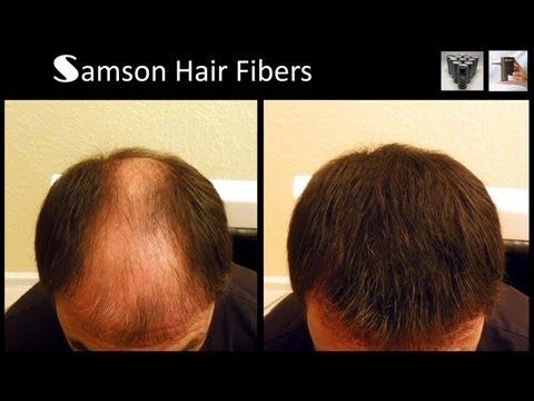 samson-hair-building-fiber-refills-and-electronic-sprayer-that-fits-samson,toppik™-and-xfusion™