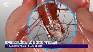 대동맥판막 협착증의 정의와 치료 [AMC 병법]