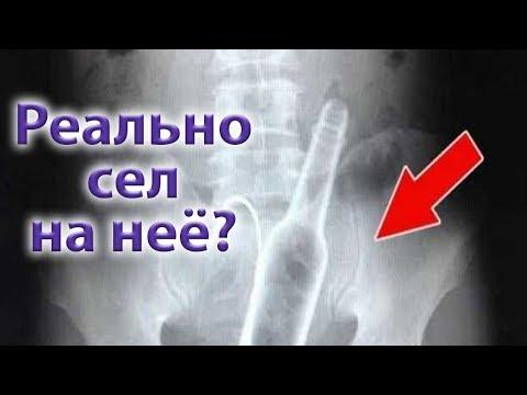 Самые шокирующие рентгеновские снимки