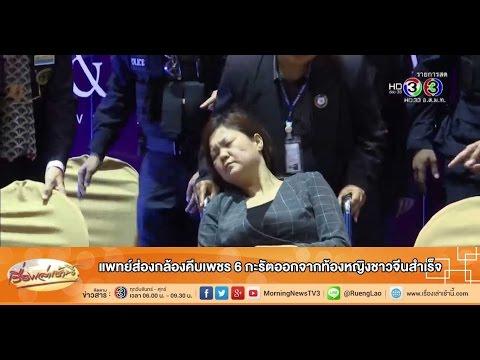 เรื่องเล่าเช้านี้ แพทย์ส่องกล้องคีบเพชร 6 กะรัตออกจากท้องหญิงชาวจีนสำเร็จ(14 ก.ย.58)