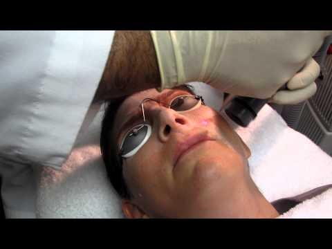 Laser Peel and Skin Resurfacing in Anaheim,New Port Beach,Costa Mesa,Los Angeles and Pasadena