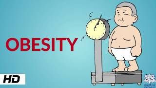 Obesity, Causes, SIgns and Symptoms, Diagnosis and Treatment.